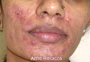 Acne Rosea on cheeks and chin