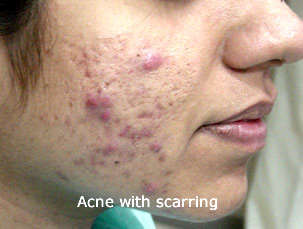 Acne with Scaring on face