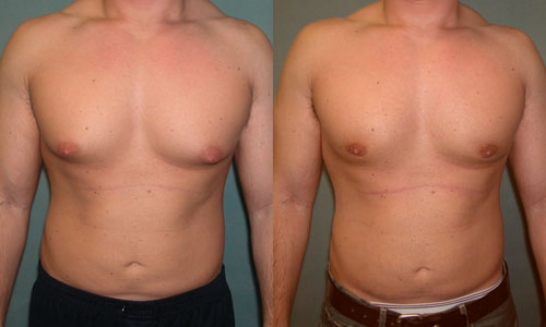 GYNECOMASTIA ( BREAST ENLARGEMENT IN MALE) – Miracle Homeo Clinic